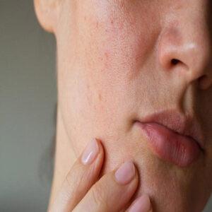 از بین بردن منافذ باز پوست