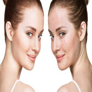 جوانسازی صورت با طب سوزنی